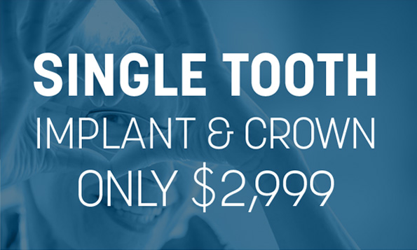 single tooth implant offer